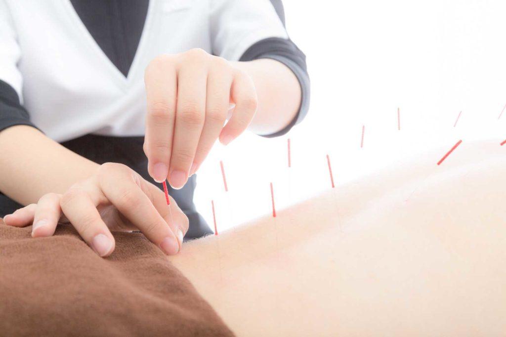 鍼灸院のフランチャイズ
